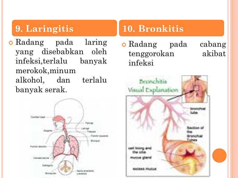 Radang pada laring yang disebabkan oleh infeksi,terlalu banyak merokok,minum alkohol, dan terlalu banyak serak. Radang pada cabang tenggorokan akibat