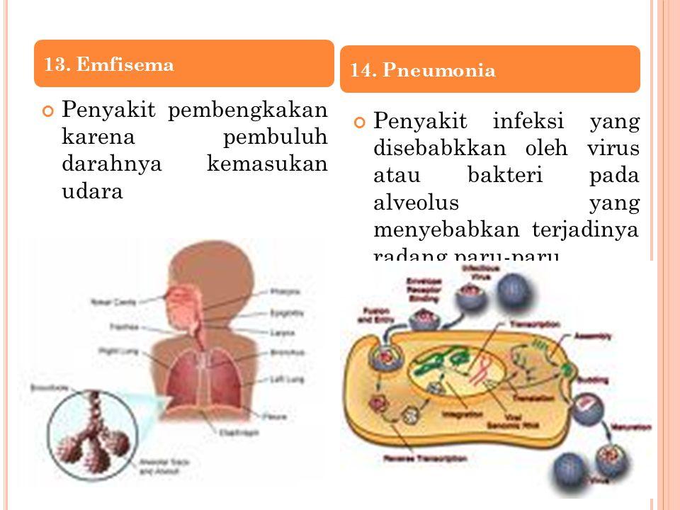 Penyakit pembengkakan karena pembuluh darahnya kemasukan udara Penyakit infeksi yang disebabkkan oleh virus atau bakteri pada alveolus yang menyebabkan terjadinya radang paru-paru 13.