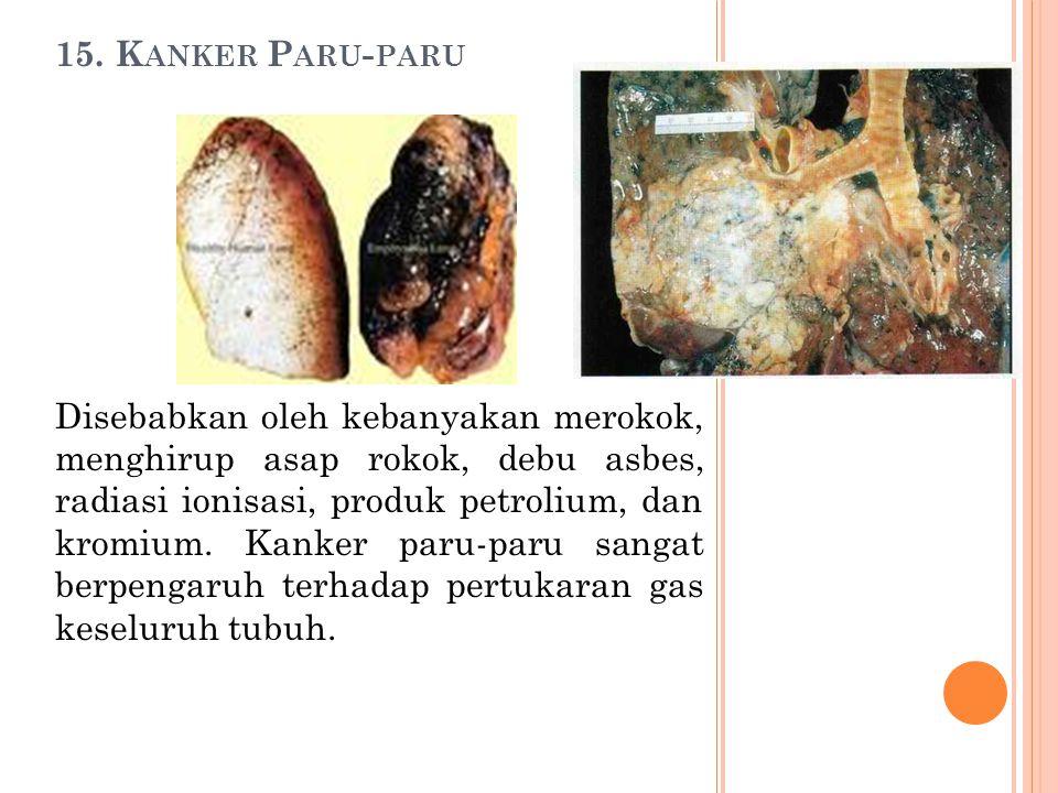 15. K ANKER P ARU - PARU Disebabkan oleh kebanyakan merokok, menghirup asap rokok, debu asbes, radiasi ionisasi, produk petrolium, dan kromium. Kanker