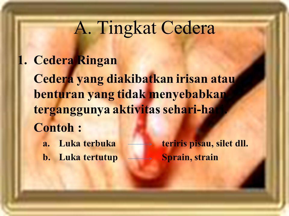 2.Cedera Sedang Cedera yang terjadi akibat gerakan atau aktivitas yang dipaksakan Contoh : a.Sprain b.Strain
