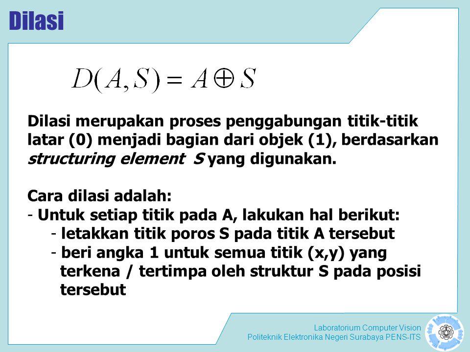 Laboratorium Computer Vision Politeknik Elektronika Negeri Surabaya PENS-ITS Contoh dilasi SAD Posisi poros ( (x,y) ∈ A ) S xy (0,0){(0,0),(1,0),(0,1)} (0,1){(0,1),(1,1),(0,2)} (0,2){(0,2),(1,2),(0,3)}...........