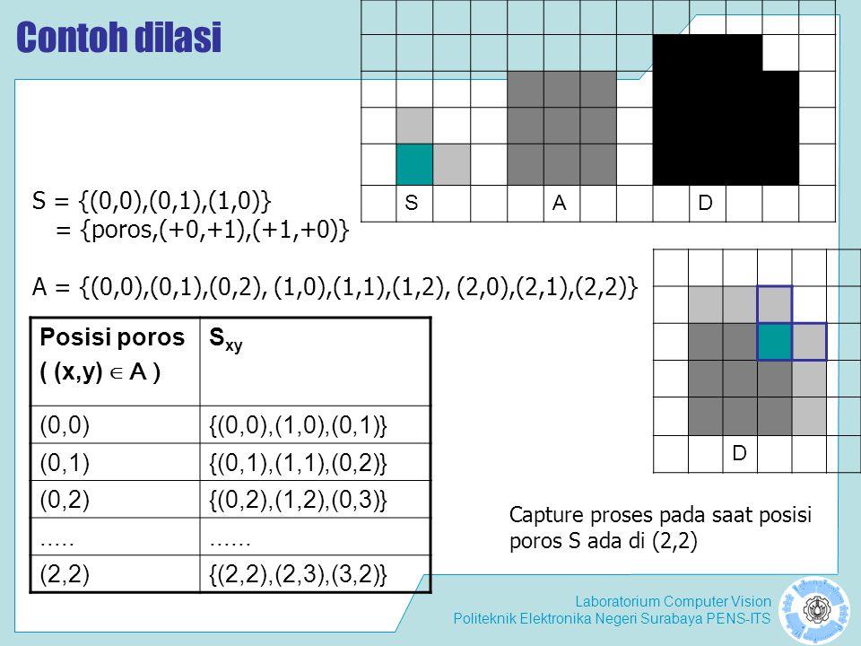Laboratorium Computer Vision Politeknik Elektronika Negeri Surabaya PENS-ITS Contoh dilasi SAD Posisi poros ( (x,y) ∈ A ) S xy (0,0){(0,0),(1,0),(0,1)
