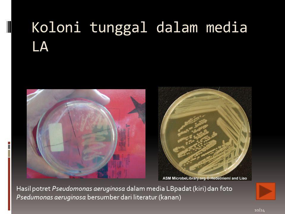 Koloni tunggal dalam media LA 10/24 Hasil potret Pseudomonas aeruginosa dalam media LBpadat (kiri) dan foto Psedumonas aeruginosa bersumber dari liter