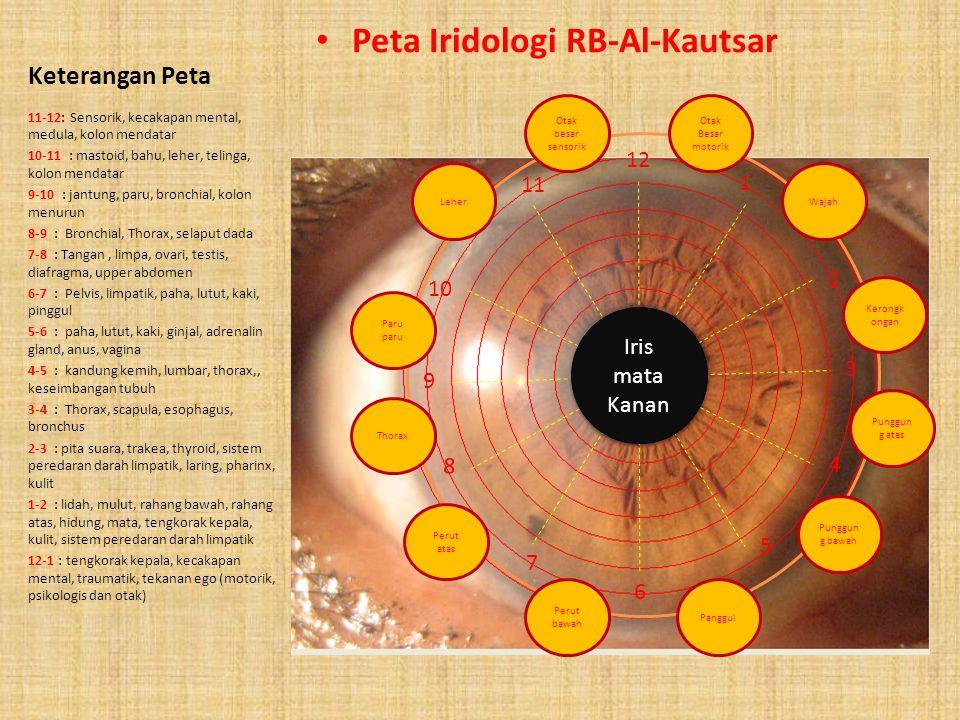 Keterangan Peta Peta Iridologi RB-Al-Kautsar 12-1: Sensorik, kecakapan mental, medula, kolon mendatar 1-2 : mastoid, bahu, leher, telinga, kolon menda