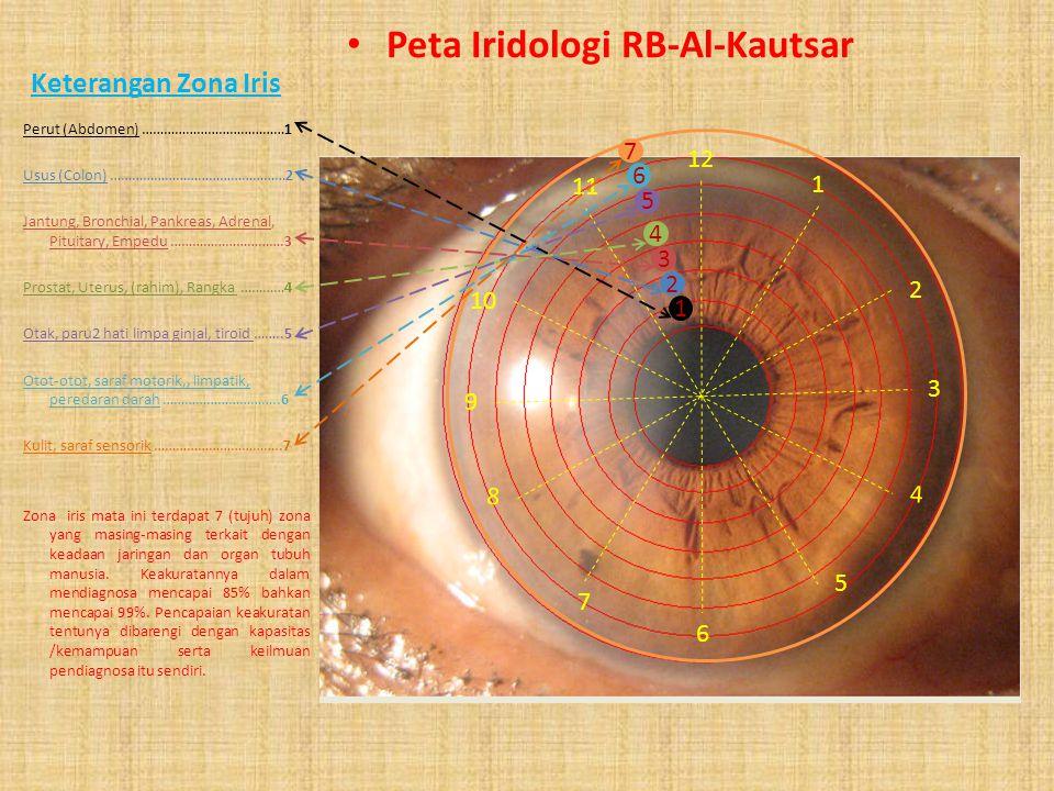 Keterangan Peta Peta Iridologi RB-Al-Kautsar 11-12: Sensorik, kecakapan mental, medula, kolon mendatar 10-11 : mastoid, bahu, leher, telinga, kolon me