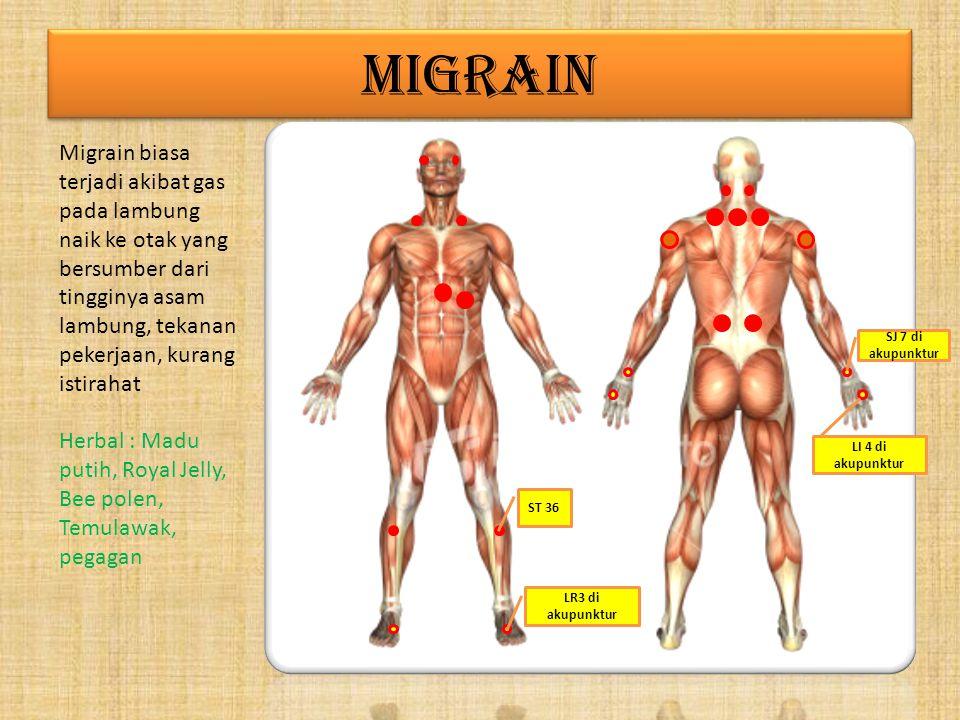 MIGRAIN Migrain biasa terjadi akibat gas pada lambung naik ke otak yang bersumber dari tingginya asam lambung, tekanan pekerjaan, kurang istirahat Herbal : Madu putih, Royal Jelly, Bee polen, Temulawak, pegagan ST 36 LR3 di akupunktur LI 4 di akupunktur SJ 7 di akupunktur