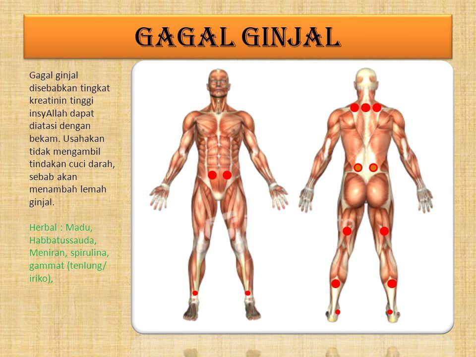 GAGAL GINJAL Gagal ginjal disebabkan tingkat kreatinin tinggi insyAllah dapat diatasi dengan bekam.