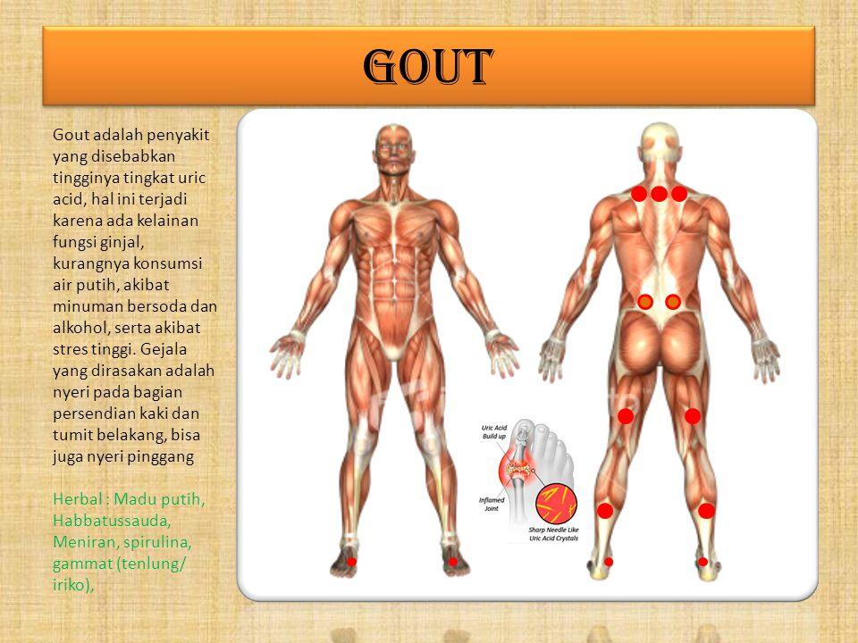 GOUT Gout adalah penyakit yang disebabkan tingginya tingkat uric acid, hal ini terjadi karena ada kelainan fungsi ginjal, kurangnya konsumsi air putih, akibat minuman bersoda dan alkohol, serta akibat stres tinggi.