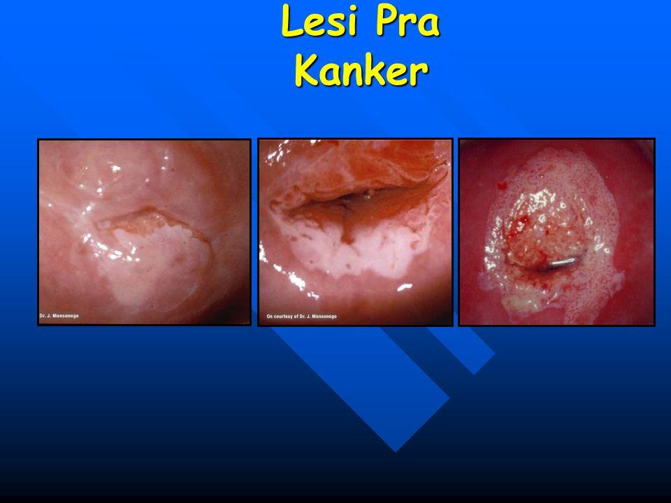 Lesi Pra Kanker
