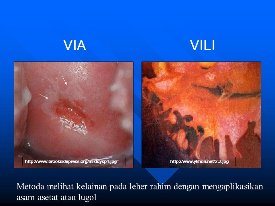 http://www.brooksidepress.org/milddysp1.jpghttp://www.ykhoa.net/2.2.jpg VIAVILI Metoda melihat kelainan pada leher rahim dengan mengaplikasikan asam a