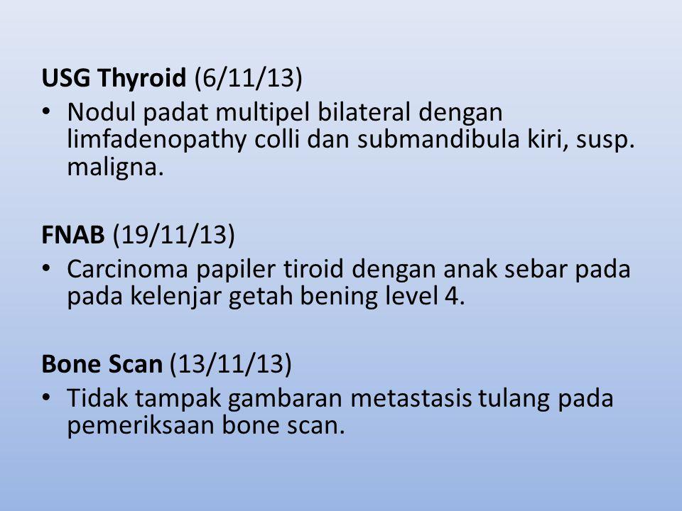 USG Thyroid (6/11/13) Nodul padat multipel bilateral dengan limfadenopathy colli dan submandibula kiri, susp. maligna. FNAB (19/11/13) Carcinoma papil