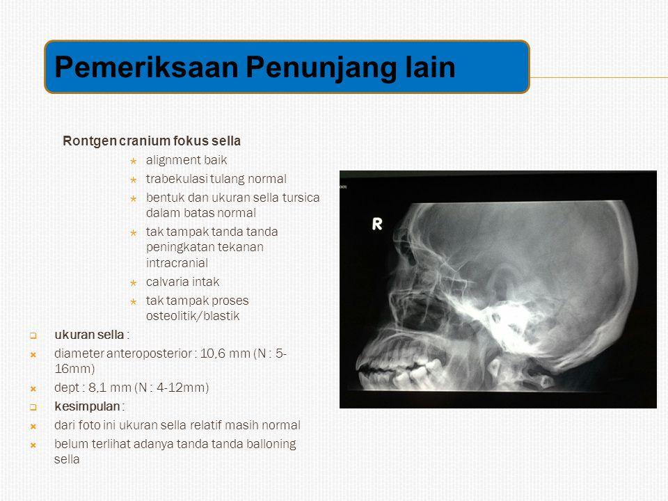 Rontgen cranium fokus sella  alignment baik  trabekulasi tulang normal  bentuk dan ukuran sella tursica dalam batas normal  tak tampak tanda tanda peningkatan tekanan intracranial  calvaria intak  tak tampak proses osteolitik/blastik  ukuran sella :  diameter anteroposterior : 10,6 mm (N : 5- 16mm)  dept : 8,1 mm (N : 4-12mm)  kesimpulan :  dari foto ini ukuran sella relatif masih normal  belum terlihat adanya tanda tanda balloning sella Pemeriksaan Penunjang lain