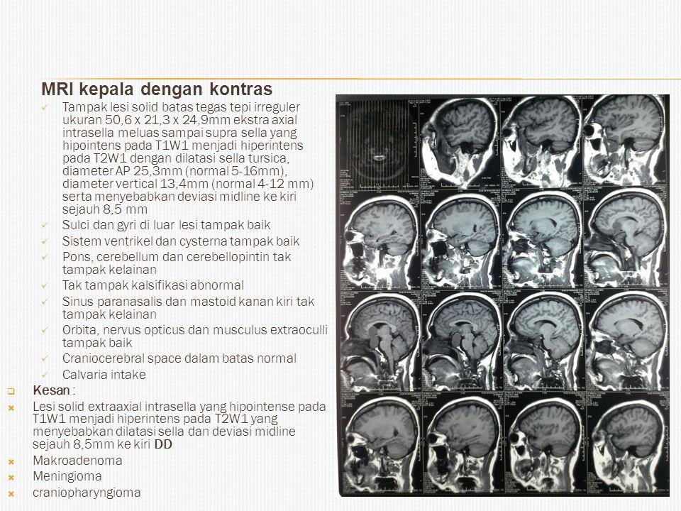 MRI kepala dengan kontras Tampak lesi solid batas tegas tepi irreguler ukuran 50,6 x 21,3 x 24,9mm ekstra axial intrasella meluas sampai supra sella yang hipointens pada T1W1 menjadi hiperintens pada T2W1 dengan dilatasi sella tursica, diameter AP 25,3mm (normal 5-16mm), diameter vertical 13,4mm (normal 4-12 mm) serta menyebabkan deviasi midline ke kiri sejauh 8,5 mm Sulci dan gyri di luar lesi tampak baik Sistem ventrikel dan cysterna tampak baik Pons, cerebellum dan cerebellopintin tak tampak kelainan Tak tampak kalsifikasi abnormal Sinus paranasalis dan mastoid kanan kiri tak tampak kelainan Orbita, nervus opticus dan musculus extraoculli tampak baik Craniocerebral space dalam batas normal Calvaria intake  Kesan :  Lesi solid extraaxial intrasella yang hipointense pada T1W1 menjadi hiperintens pada T2W1 yang menyebabkan dilatasi sella dan deviasi midline sejauh 8,5mm ke kiri DD  Makroadenoma  Meningioma  craniopharyngioma