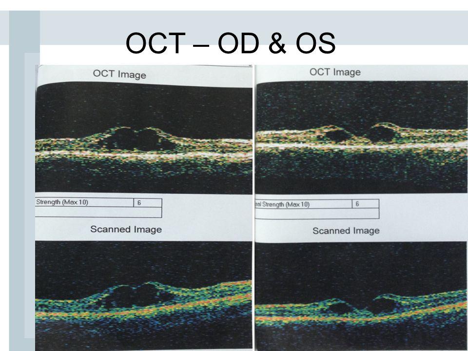 OCT – OD & OS