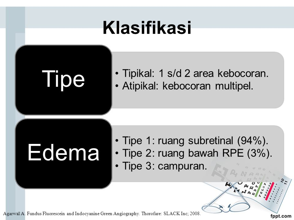 Klasifikasi Agarwal A.Fundus Fluorescein and Indocyanine Green Angiography.