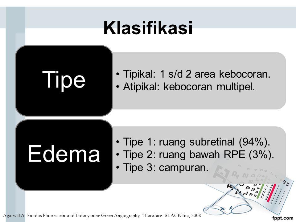 Klasifikasi Agarwal A. Fundus Fluorescein and Indocyanine Green Angiography. Thorofare: SLACK Inc; 2008. Tipikal: 1 s/d 2 area kebocoran. Atipikal: ke