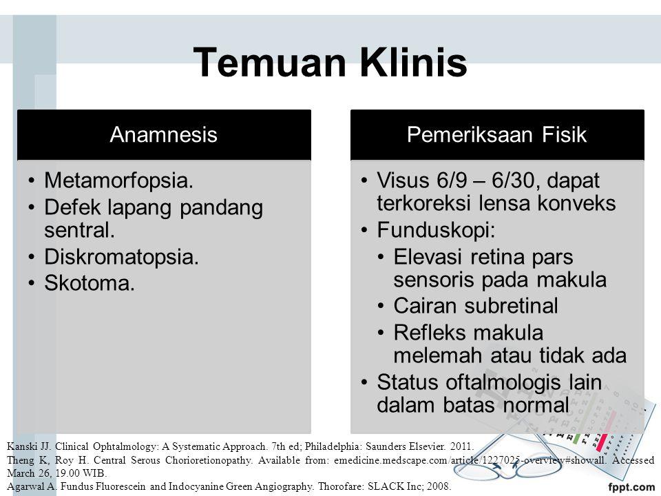 Temuan Klinis Anamnesis Metamorfopsia. Defek lapang pandang sentral. Diskromatopsia. Skotoma. Pemeriksaan Fisik Visus 6/9 – 6/30, dapat terkoreksi len