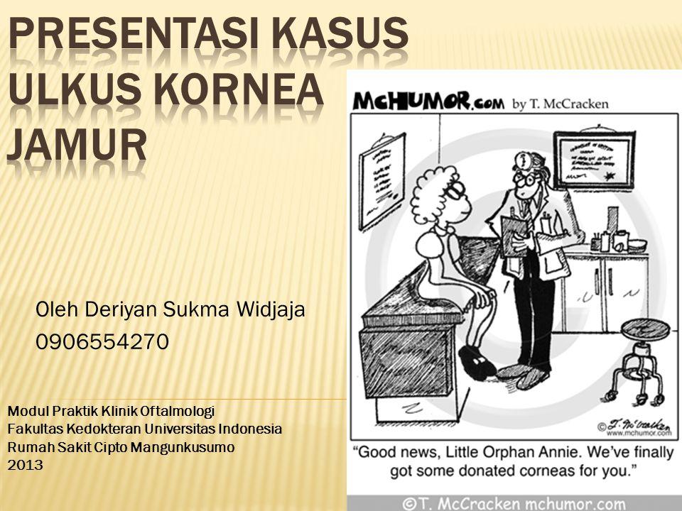 Oleh Deriyan Sukma Widjaja 0906554270 Modul Praktik Klinik Oftalmologi Fakultas Kedokteran Universitas Indonesia Rumah Sakit Cipto Mangunkusumo 2013
