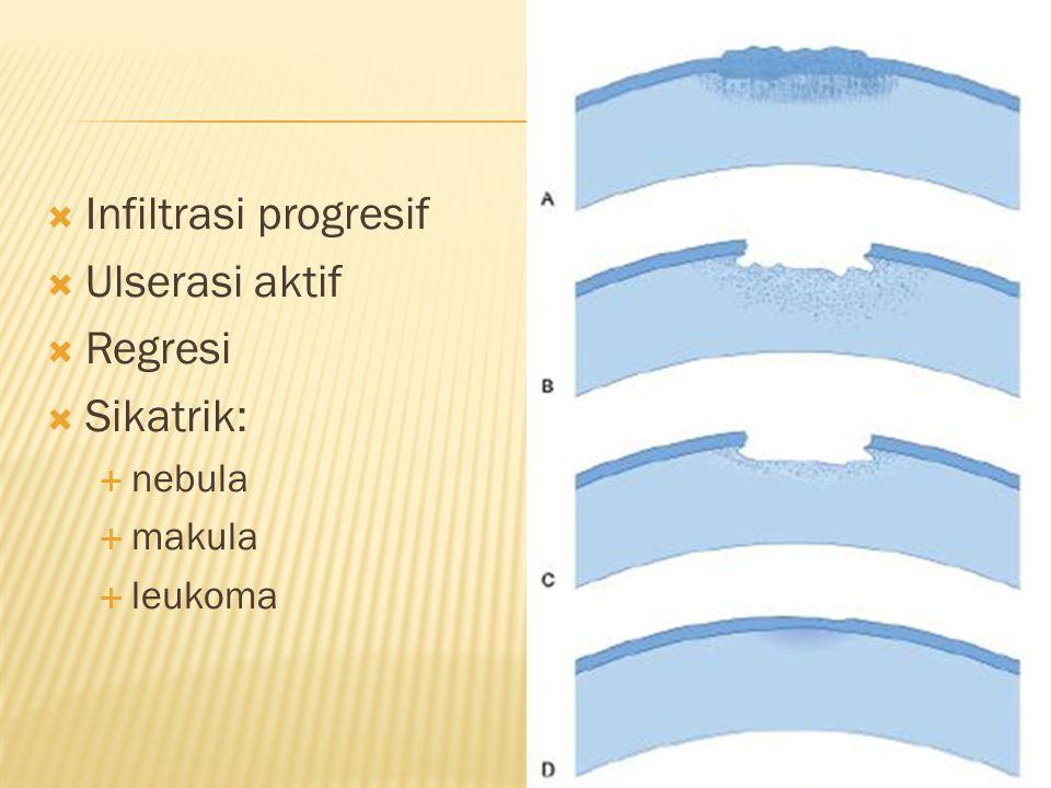  Infiltrasi progresif  Ulserasi aktif  Regresi  Sikatrik:  nebula  makula  leukoma