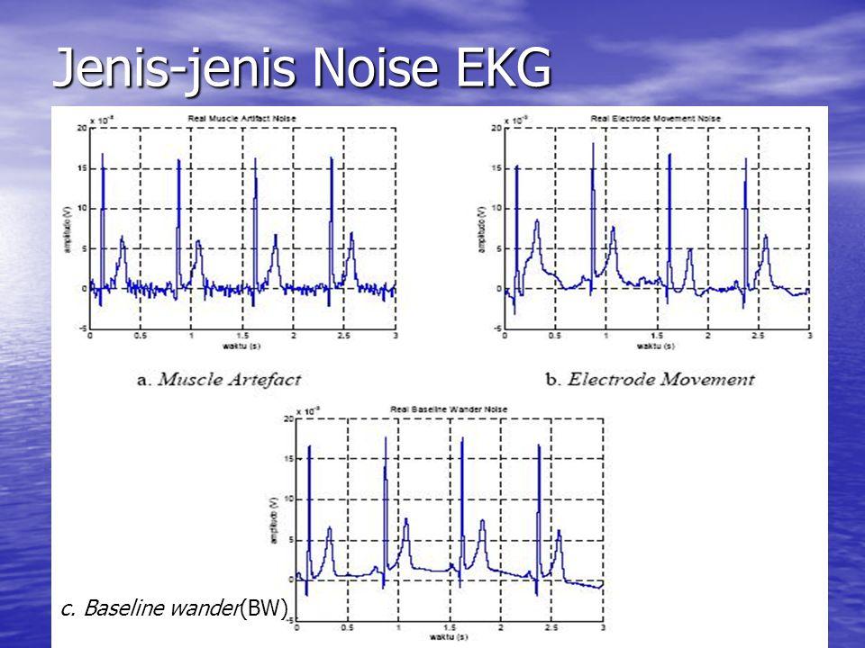 Jenis-jenis Noise EKG c. Baseline wander(BW)