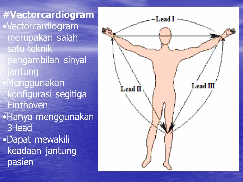 #Vectorcardiogram Vectorcardiogram merupakan salah satu teknik pengambilan sinyal jantung Menggunakan konfigurasi segitiga Einthoven Hanya menggunakan