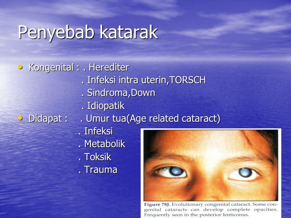 Penyebab katarak Kongenital :. Herediter Kongenital :. Herediter. Infeksi intra uterin,TORSCH. Infeksi intra uterin,TORSCH. Sindroma,Down. Sindroma,Do