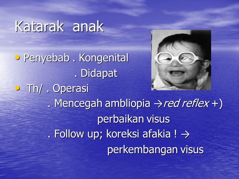 Katarak anak Penyebab. Kongenital Penyebab. Kongenital. Didapat. Didapat Th/. Operasi Th/. Operasi. Mencegah ambliopia → red reflex +). Mencegah ambli