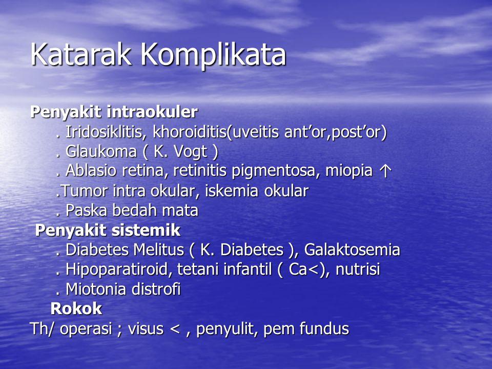 Katarak Komplikata Penyakit intraokuler. Iridosiklitis, khoroiditis(uveitis ant'or,post'or). Iridosiklitis, khoroiditis(uveitis ant'or,post'or). Glauk