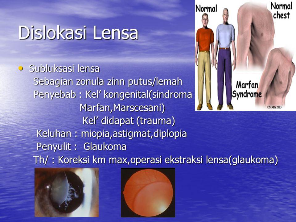 Dislokasi Lensa Subluksasi lensa Subluksasi lensa Sebagian zonula zinn putus/lemah Sebagian zonula zinn putus/lemah Penyebab : Kel' kongenital(sindroma Penyebab : Kel' kongenital(sindroma Marfan,Marscesani) Marfan,Marscesani) Kel' didapat (trauma) Kel' didapat (trauma) Keluhan : miopia,astigmat,diplopia Keluhan : miopia,astigmat,diplopia Penyulit : Glaukoma Penyulit : Glaukoma Th/ : Koreksi km max,operasi ekstraksi lensa(glaukoma) Th/ : Koreksi km max,operasi ekstraksi lensa(glaukoma)