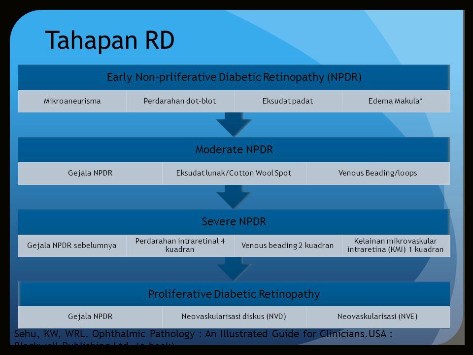Tahapan RD Proliferative Diabetic Retinopathy Gejala NPDRNeovaskularisasi diskus (NVD)Neovaskularisasi (NVE) Severe NPDR Gejala NPDR sebelumnya Perdar