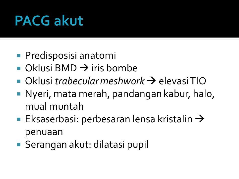  Predisposisi anatomi  Oklusi BMD  iris bombe  Oklusi trabecular meshwork  elevasi TIO  Nyeri, mata merah, pandangan kabur, halo, mual muntah 