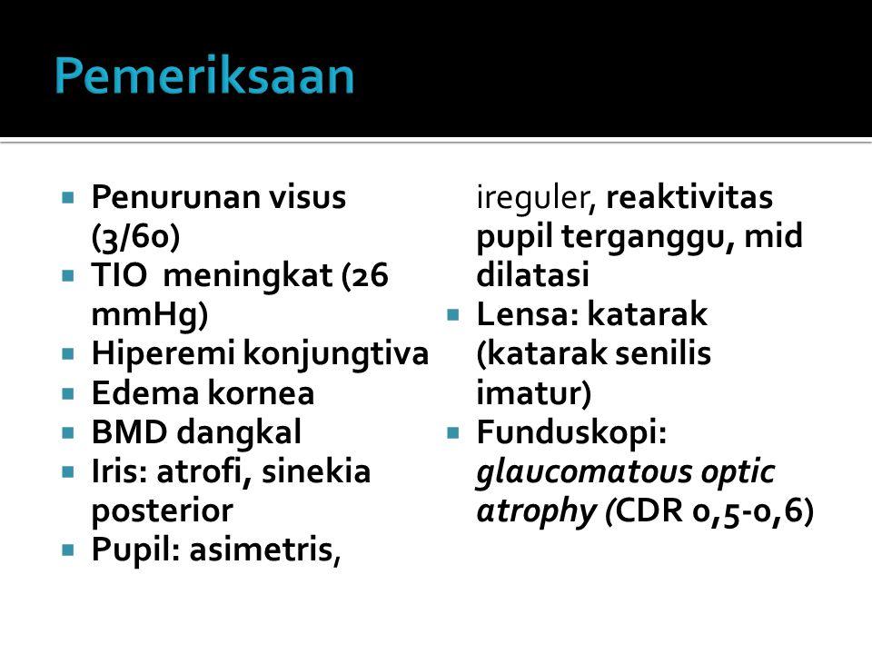  Penurunan visus (3/60)  TIO meningkat (26 mmHg)  Hiperemi konjungtiva  Edema kornea  BMD dangkal  Iris: atrofi, sinekia posterior  Pupil: asimetris, ireguler, reaktivitas pupil terganggu, mid dilatasi  Lensa: katarak (katarak senilis imatur)  Funduskopi: glaucomatous optic atrophy (CDR 0,5-0,6)