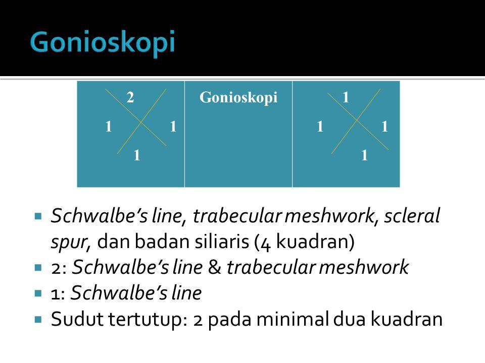  Schwalbe's line, trabecular meshwork, scleral spur, dan badan siliaris (4 kuadran)  2: Schwalbe's line & trabecular meshwork  1: Schwalbe's line  Sudut tertutup: 2 pada minimal dua kuadran 2 1 Gonioskopi1 1 1 1