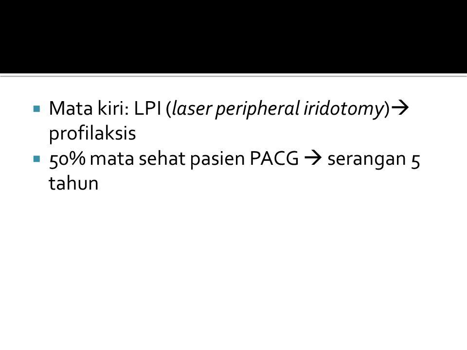  Mata kiri: LPI (laser peripheral iridotomy)  profilaksis  50% mata sehat pasien PACG  serangan 5 tahun