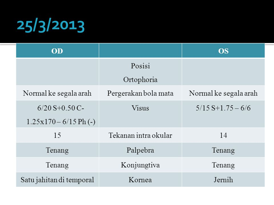 ODOS Posisi Ortophoria Normal ke segala arahPergerakan bola mataNormal ke segala arah 6/20 S+0.50 C- 1.25x170 – 6/15 Ph (-) Visus5/15 S+1.75 – 6/6 15T