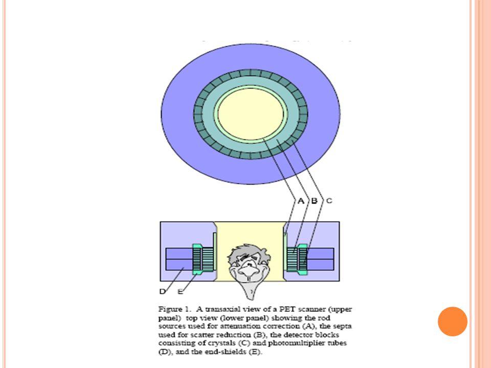 PRINSIP KERJA PET-CT S CAN cyclotron menghasilkan isotop fluor18 yang digunakan untuk mensintesa 18FDG (Fluorodeoxyglucose).