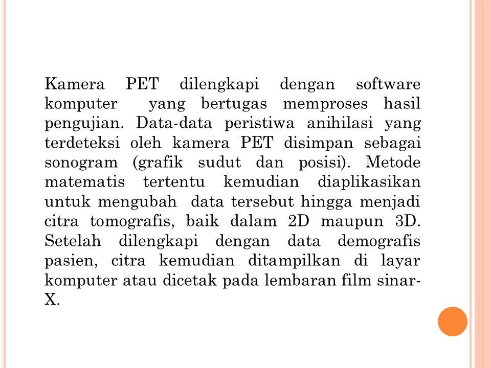 Kamera PET dilengkapi dengan software komputer yang bertugas memproses hasil pengujian. Data-data peristiwa anihilasi yang terdeteksi oleh kamera PET
