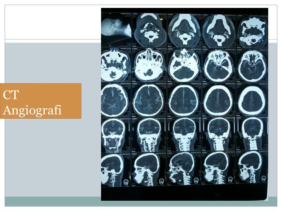 CT Angiografi