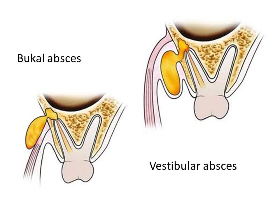 Bukal absces Vestibular absces