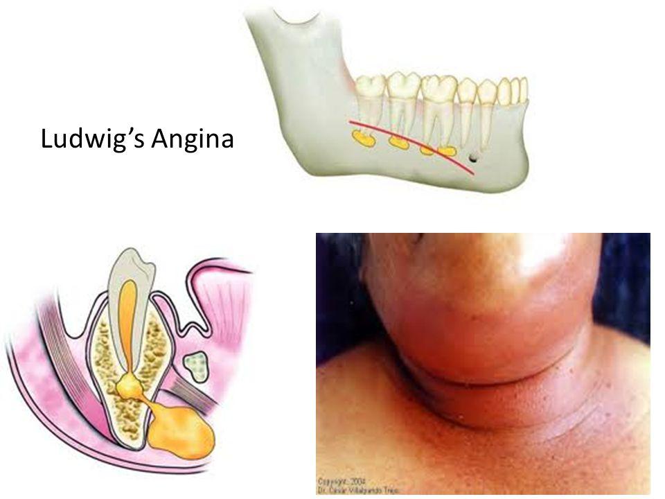 Ludwig's Angina