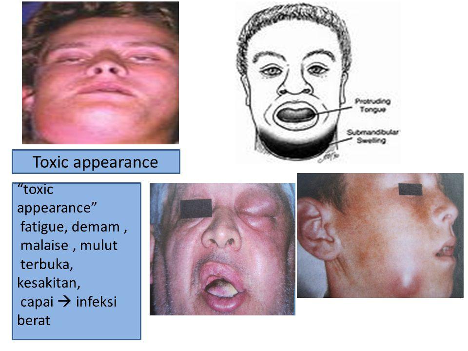 """Toxic appearance """"toxic appearance"""" fatigue, demam, malaise, mulut terbuka, kesakitan, capai  infeksi berat"""