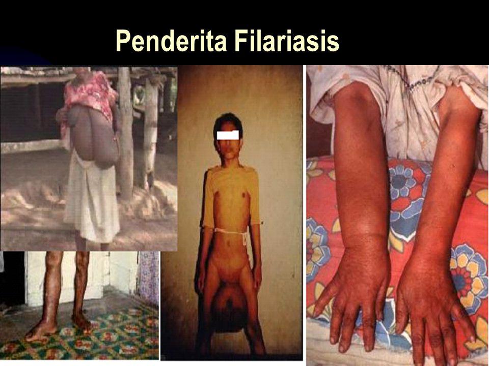 Penderita Filariasis