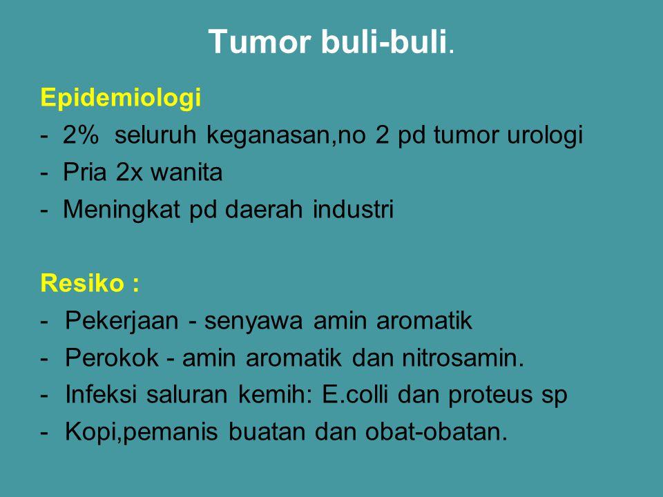 Tumor buli-buli. Epidemiologi - 2% seluruh keganasan,no 2 pd tumor urologi - Pria 2x wanita - Meningkat pd daerah industri Resiko : -Pekerjaan - senya