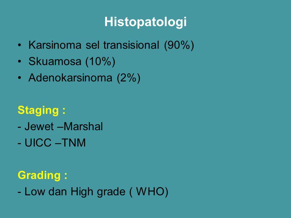 Histopatologi Karsinoma sel transisional (90%) Skuamosa (10%) Adenokarsinoma (2%) Staging : - Jewet –Marshal - UICC –TNM Grading : - Low dan High grad