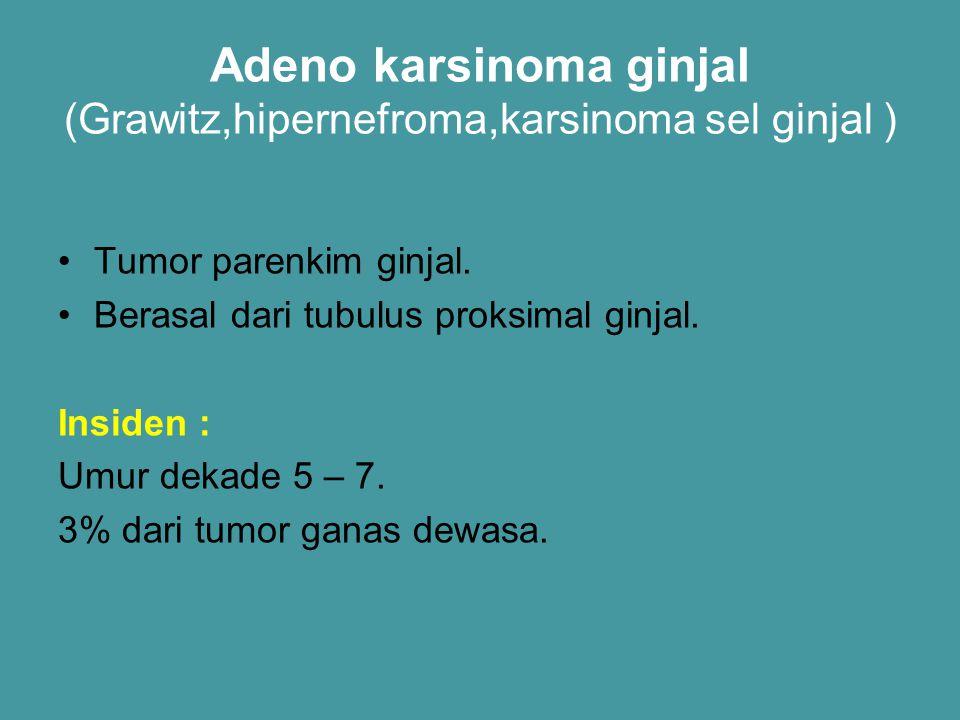 Adeno karsinoma ginjal (Grawitz,hipernefroma,karsinoma sel ginjal ) Tumor parenkim ginjal. Berasal dari tubulus proksimal ginjal. Insiden : Umur dekad
