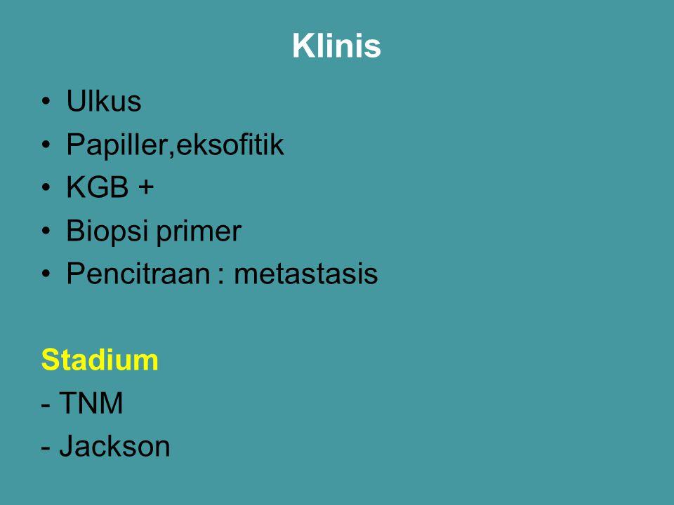 Klinis Ulkus Papiller,eksofitik KGB + Biopsi primer Pencitraan : metastasis Stadium - TNM - Jackson