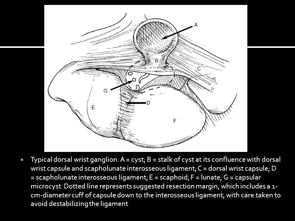 Seringkali tidak terlihat  Hanya bisa dipalpasi saat volar flexion  Penekanan PIN  Nyeri pergelangan tangan  Disebabkan Scapholunate diastasis  Diagnosis diferensial :  Sprain Ligamen Scapholunate  Komplikasi setelah eksisi  Instabilitas karpal