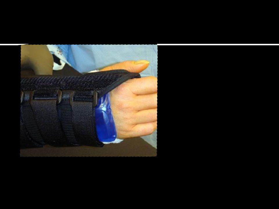  Jenis ganglion tersering kedua (18 – 20%)  Terletak diatas ujung distal radius atau diatas scaphoid tubercle  Muncul dari serat ligamen dan kapsul dibawah volar wrist crease dan diantara FCR dan APL  Membentuk kumparan bersama percabangan arteri radialis Wolfe, S.W., Hotchkiss, R.N., Pederson W.C., Kozin S.H.