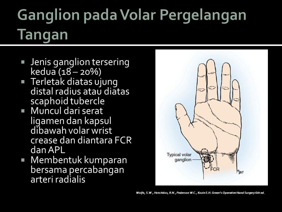  Membentuk kista multilokul  dibawah otot thenar,  sepanjang tendon FCR,  carpal canal,  hingga dibawah kompartemen ekstensor 1  Untuk identifikasi ekstensi kista  palpasi dan kompresi jari  Nilai aliran arteri radialis dan Ulnaris  Tes Allen