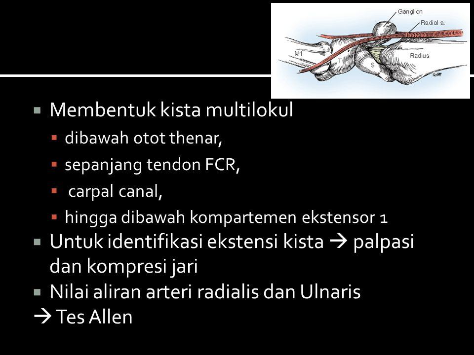  Membentuk kista multilokul  dibawah otot thenar,  sepanjang tendon FCR,  carpal canal,  hingga dibawah kompartemen ekstensor 1  Untuk identifik